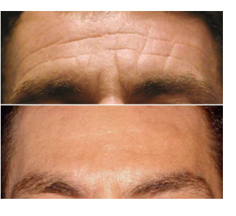 before and after image