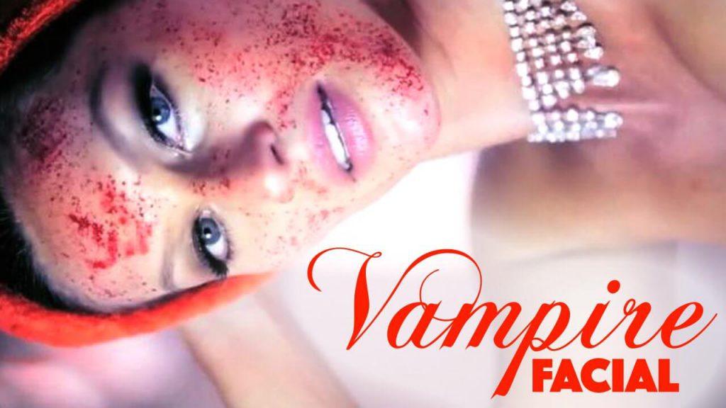 vampire-facial-1024x576