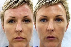 RI Botox